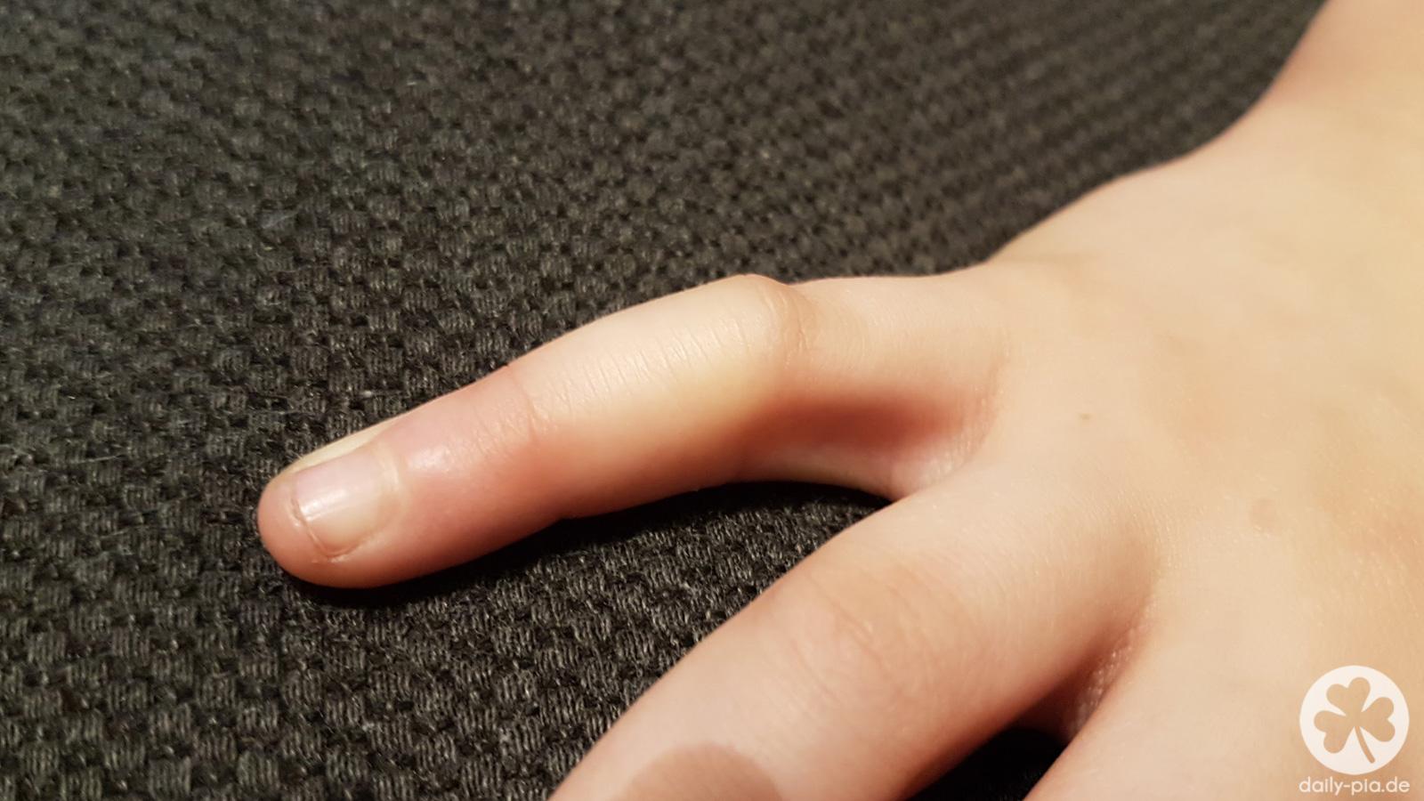 Nagel finger blau geklemmt Finger gequetscht